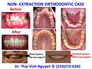 Non-Extraction Orthodontics