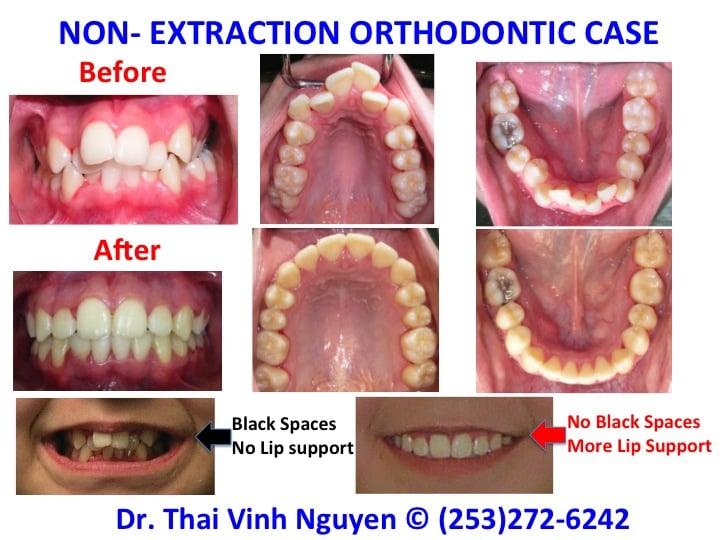 Non-Extraction Orthodontics Treatment - Excellent Dental